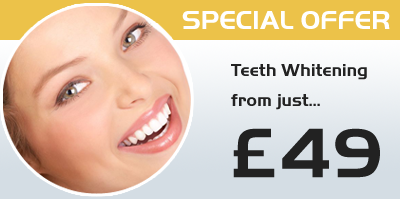 teeth whitenning Watford