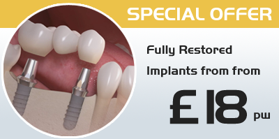 dental implants Watford