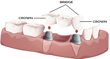 crown-bridge