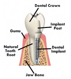 implant_diagram