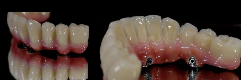 Fixed Teeth in a Day Fixed Implant Bridge