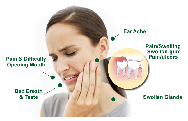 Wisdom-Teeth-Symptoms