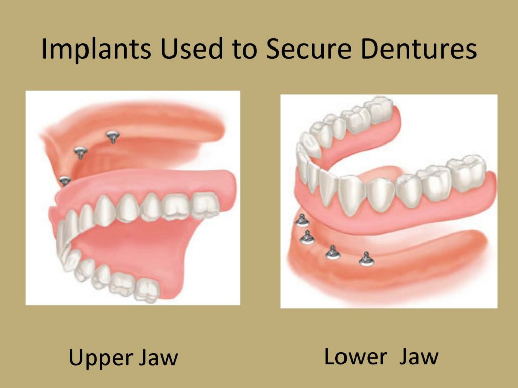 implant overdenture