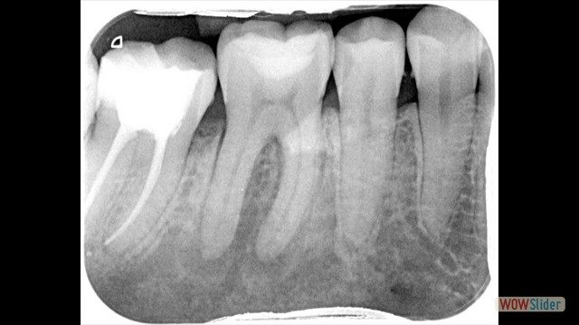 Tooth with abscess
