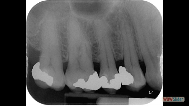 Tooth before root treatment