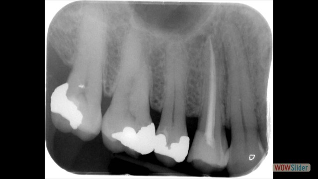Tooth before treatment